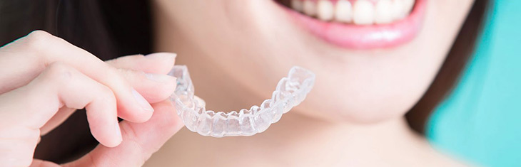 clear path aligners invisible braces
