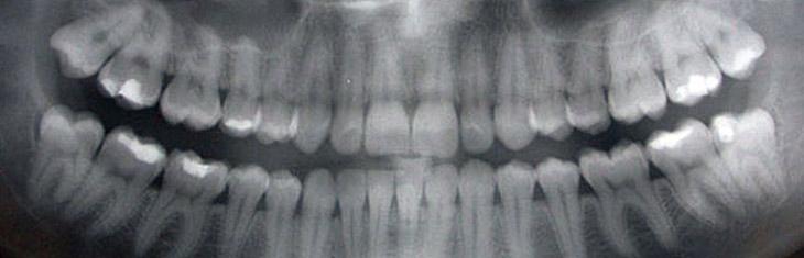 Digital Full Mouth Panoramic X Ray In Dwarka Delhi Vcode